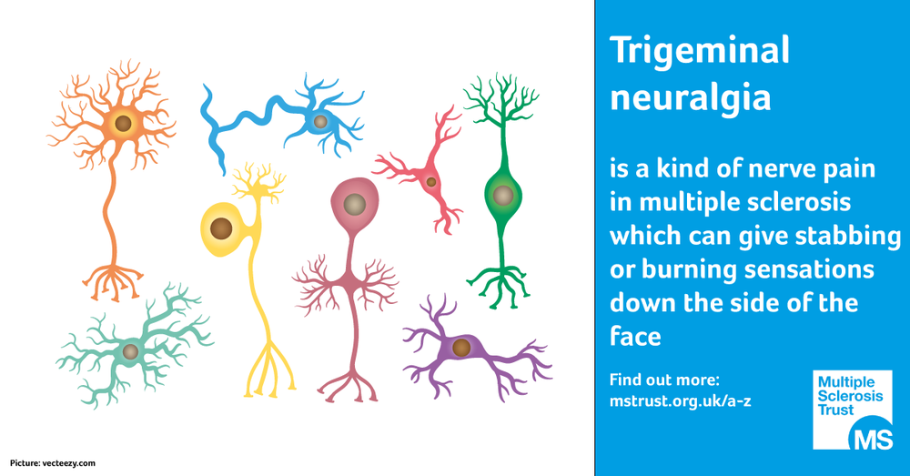 trigeminal-neuralgia.png